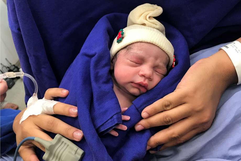 This Dec. 15, 2017 photo provided by transplant surgeon Dr. Wellington Andraus shows the baby girl born to a woman with a uterus transplanted from a deceased donor at the Hospital das Clinicas of the University of Sao Paulo School of Medicine, Sao Paulo, Brazil, on the day of her birth. Nearly a year later, mother and baby are both healthy. (Courtesy Dr. Wellington Andraus via AP) Photo: Associated Press